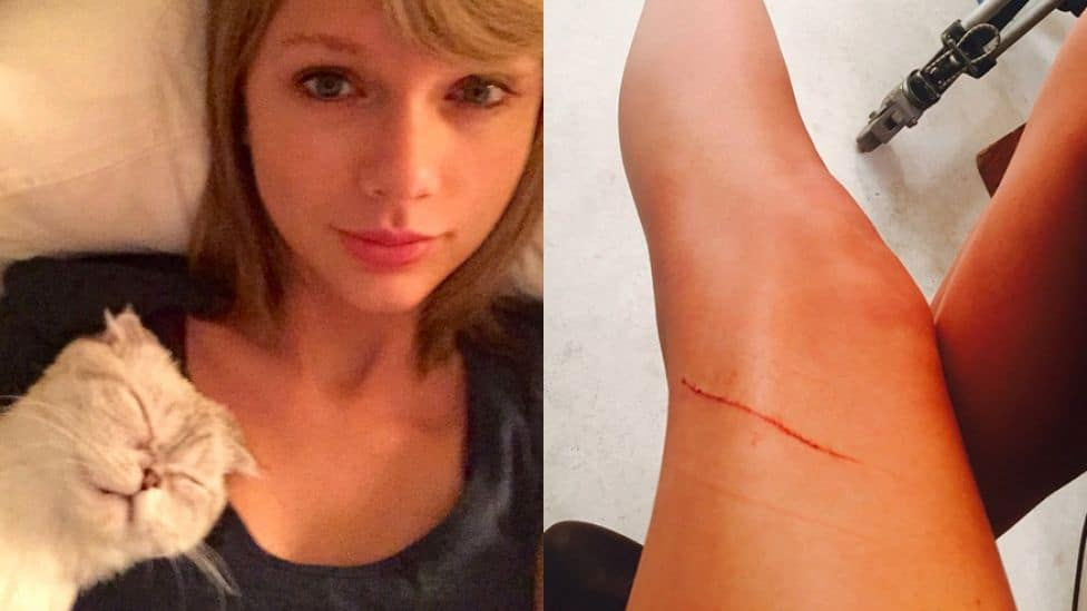 taylor swift cat scratch