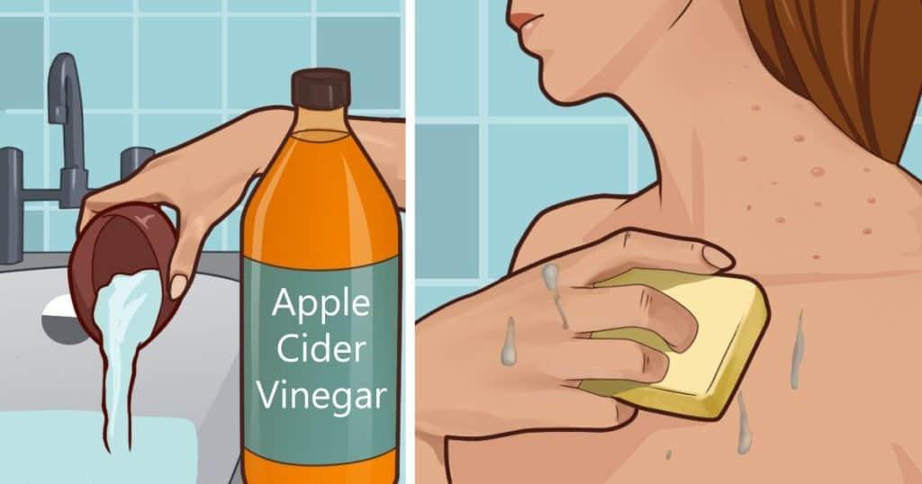 apple cider skin
