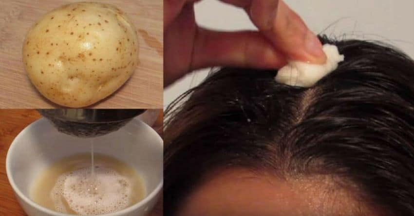get rid gray hair potato skins